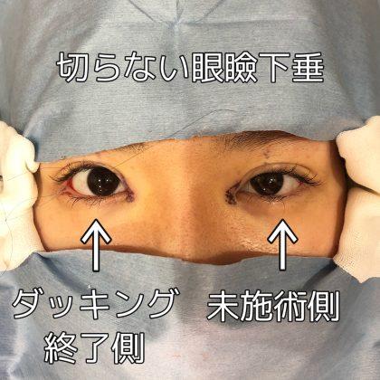 眼瞼下垂(非切開法)