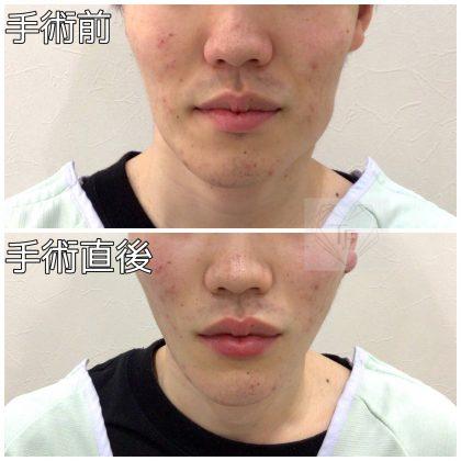 男性美容 フェイスリフト
