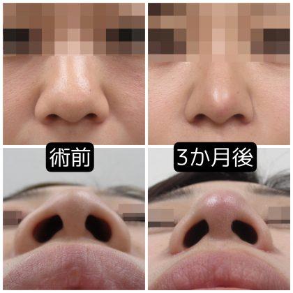 鼻尖修正と鼻翼縮小