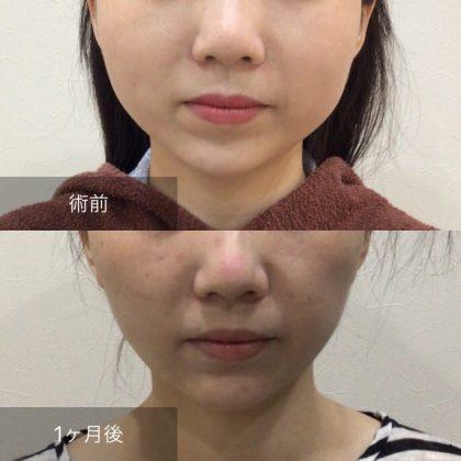 頬の脂肪吸引、ヒアルロン酸あご症例